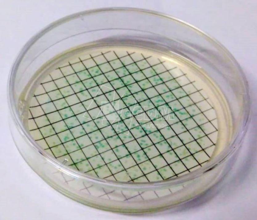 controle_de_nivel_microbiologico_04